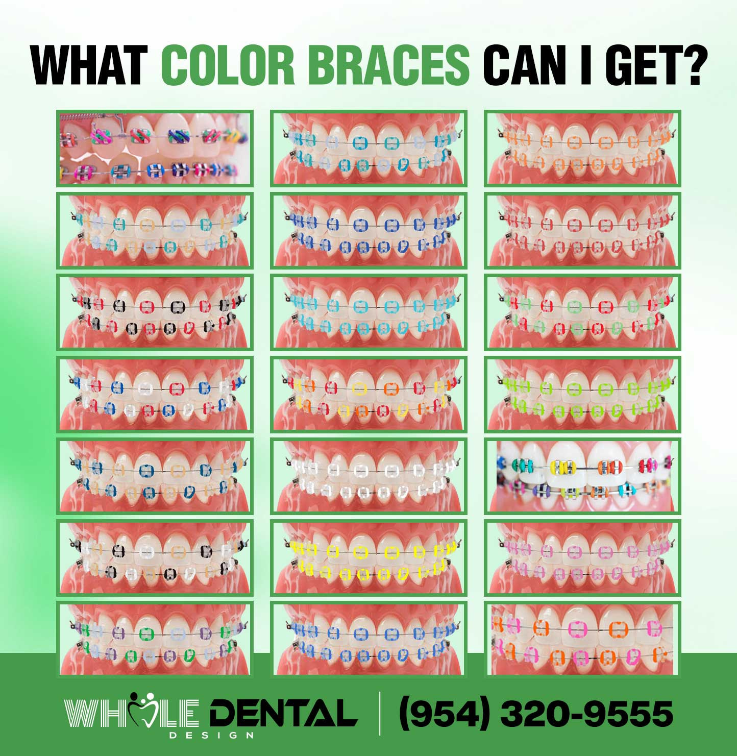 Dental-Braces-HD-Image2