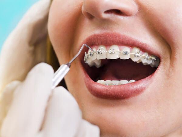 braces-clean
