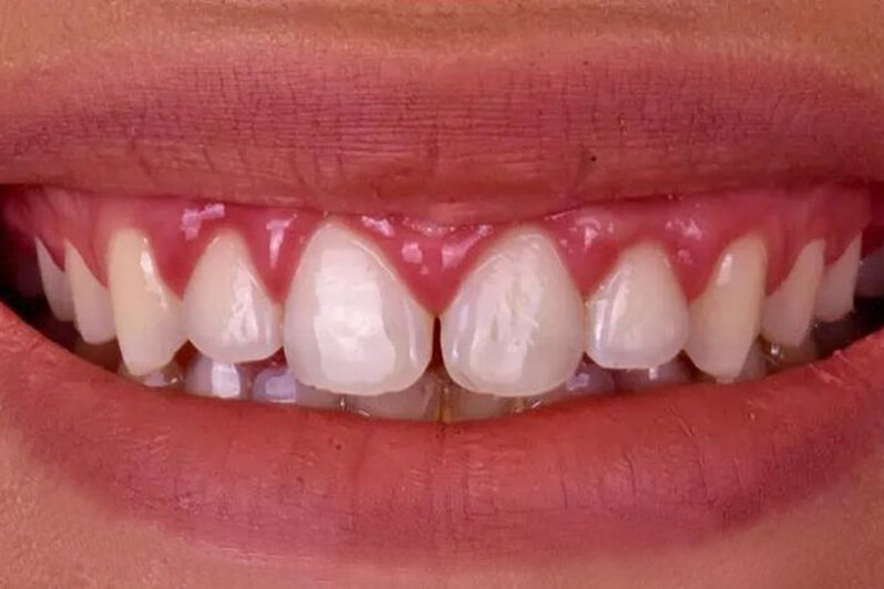 Whole Dental